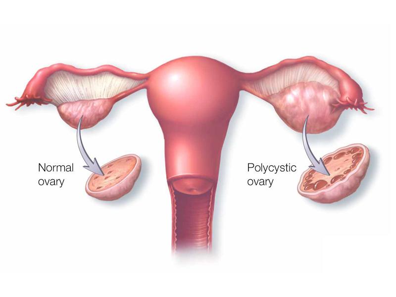 Σαμόλης-πολυκυστικές ωοθήκες